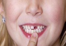mơ thấy rụng răng đánh con gì